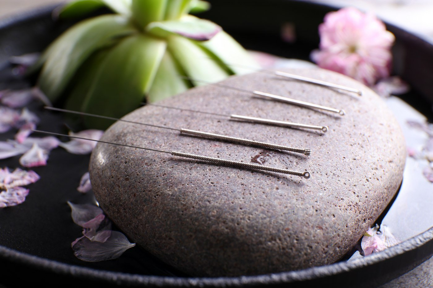 The Benefits of Acupuncture in the Summer