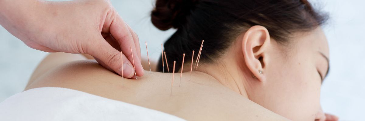 Fertility Acupuncture 101: How Does Acupuncture Work?